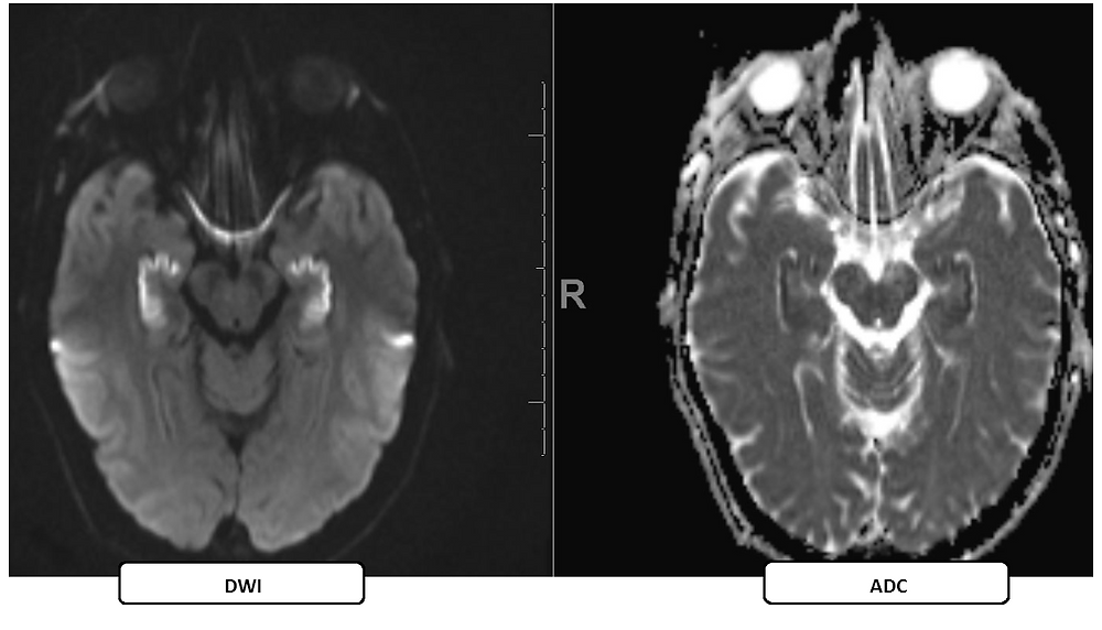 MRI of Bilateral Hippocampal Infarction