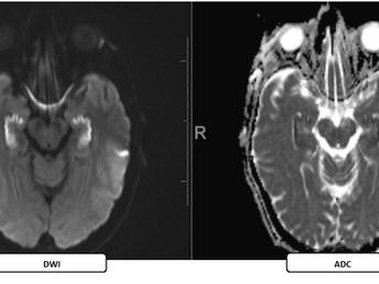 Bilateral Hippocampal Infarction