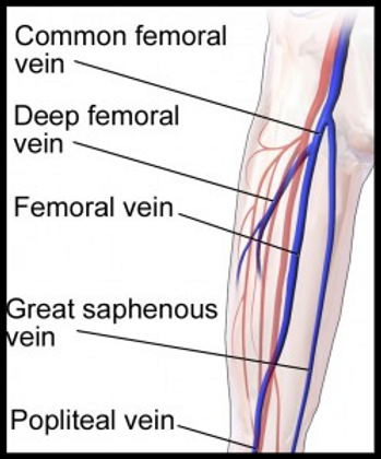 The Superficial Femoral Vein is a Deep Vein-Huh?   Radiology ...