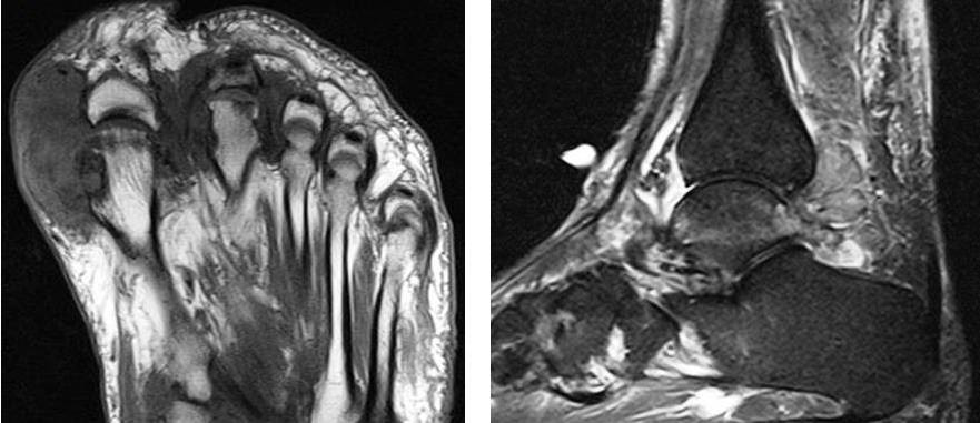 MRI Gout in foot with tophi