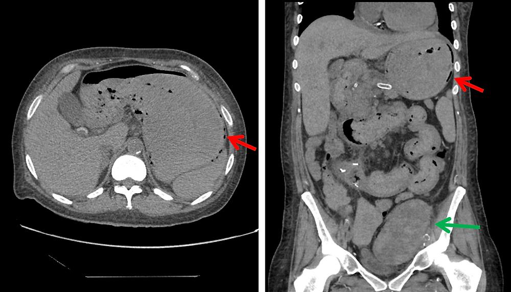 Gastric volvulus CT scan