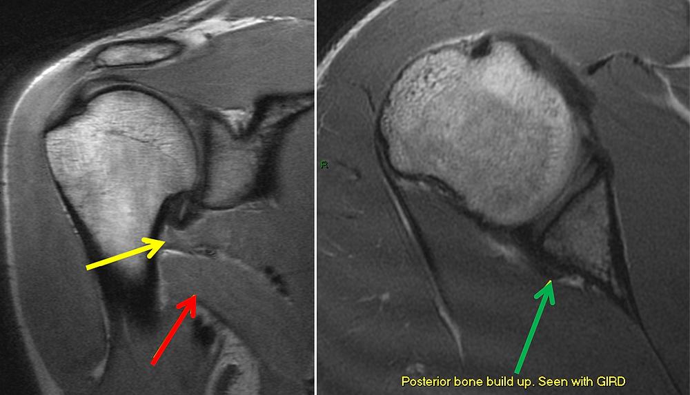 Subscapular Denervation MRI