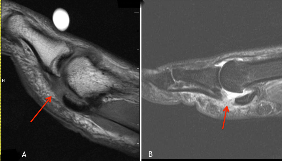 Chronic Plantar Fasciosis with Baxter's Denervation MRI
