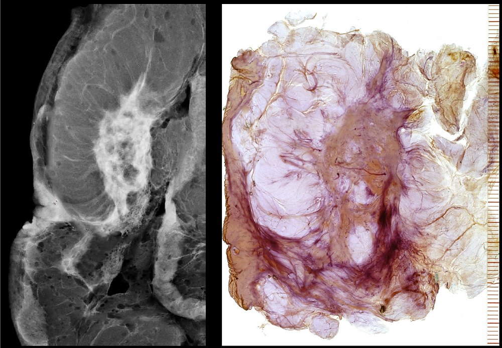 Juvenile Papillomatosis (Swiss Cheese Disease) of the Breast - Specimen radiograph and Histology