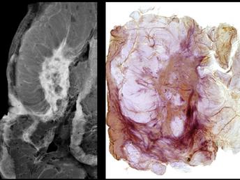 Bilateral Breast Cancer Radiologic Pathologic Correlation