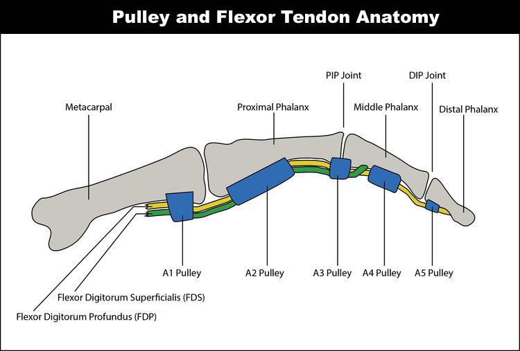 Tear of the Flexor Pulley of the Finger Diagram