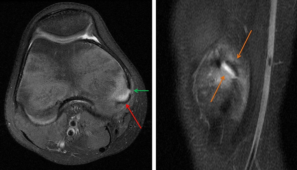 ​ ​​  ​MRI of Avulsion Fracture of the Medial Head of the Gastrocnemius Muscle