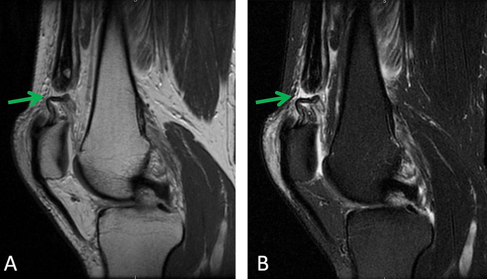 Quadriceps Tendon Rupture MRI