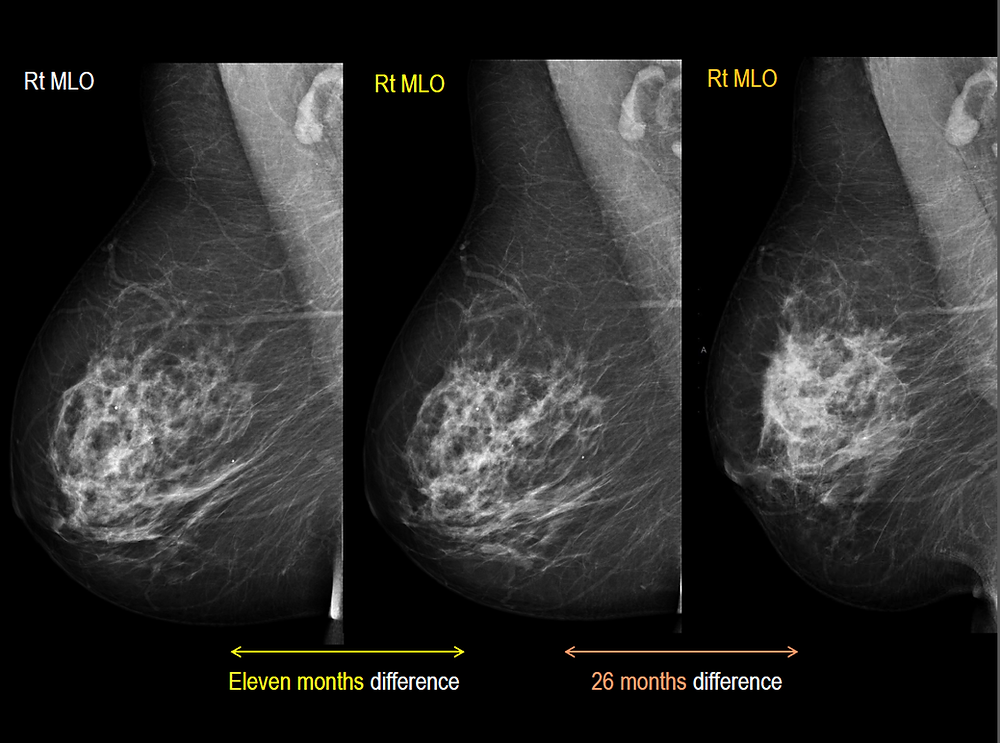 Bilateral Breast Cancer Mammogram