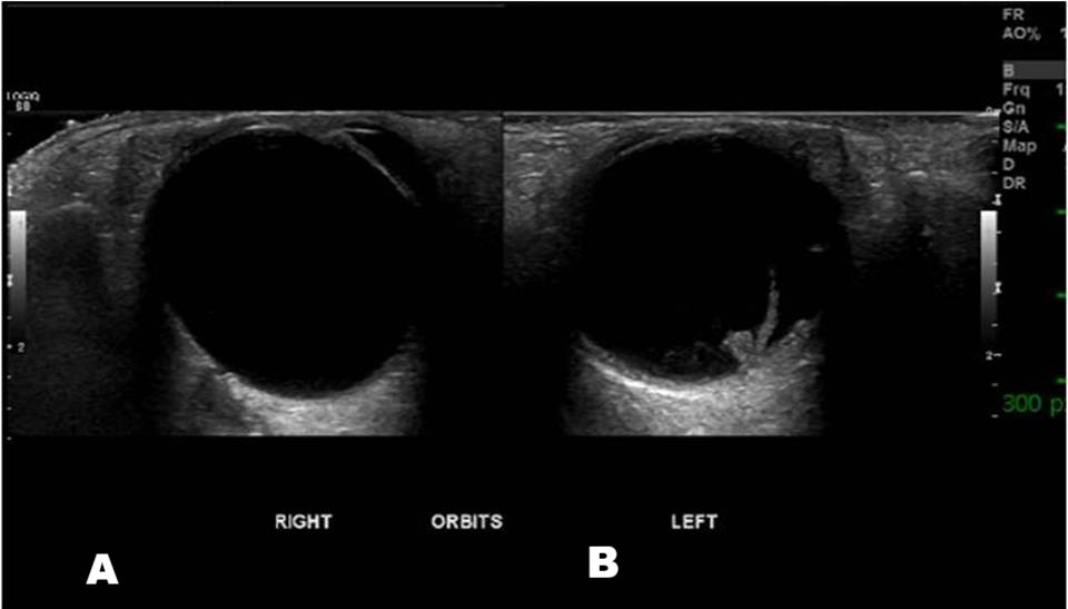 Retinal detachment on Ultrasound