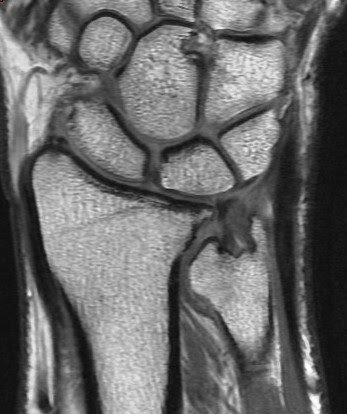 Non-united Scaphoid fracture