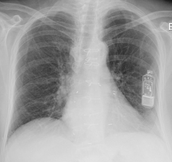 Chest radiograph of patient with Medtronic Reveal XT implantable cardiac loop recorder