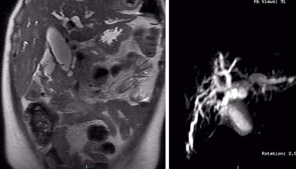 Duodenal Carcinoma MRI and MRCP