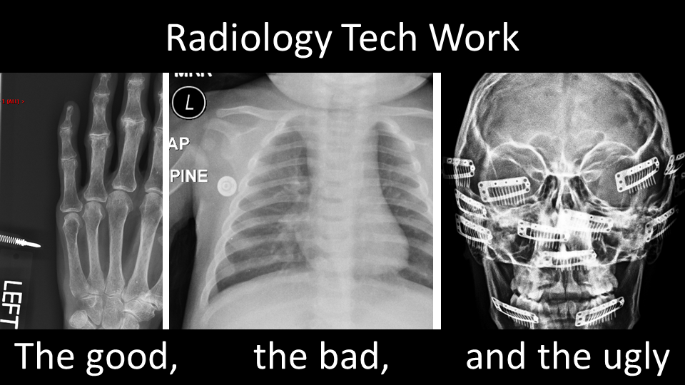 Radiology tech quality- the good, the bad, and the ugly