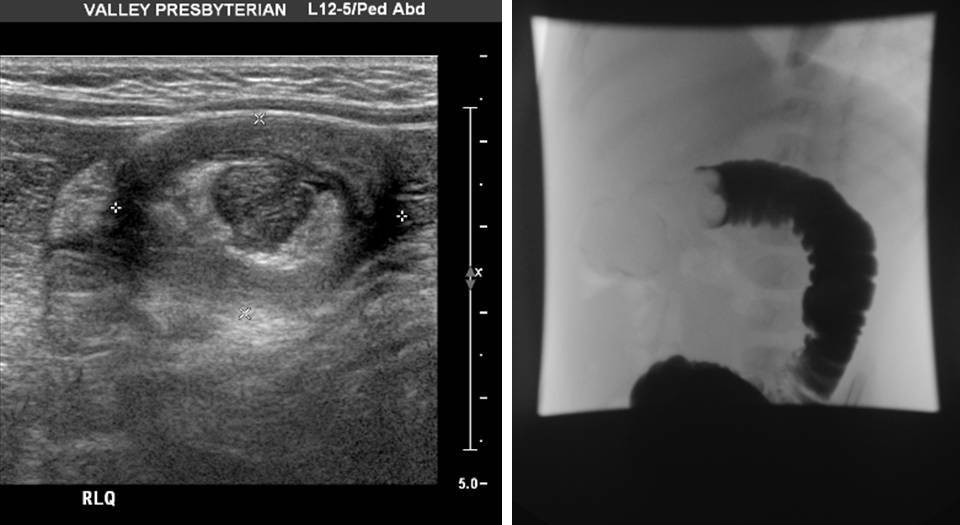 Intussusception Target sign on ultrasound due to intussusception and contrast enema