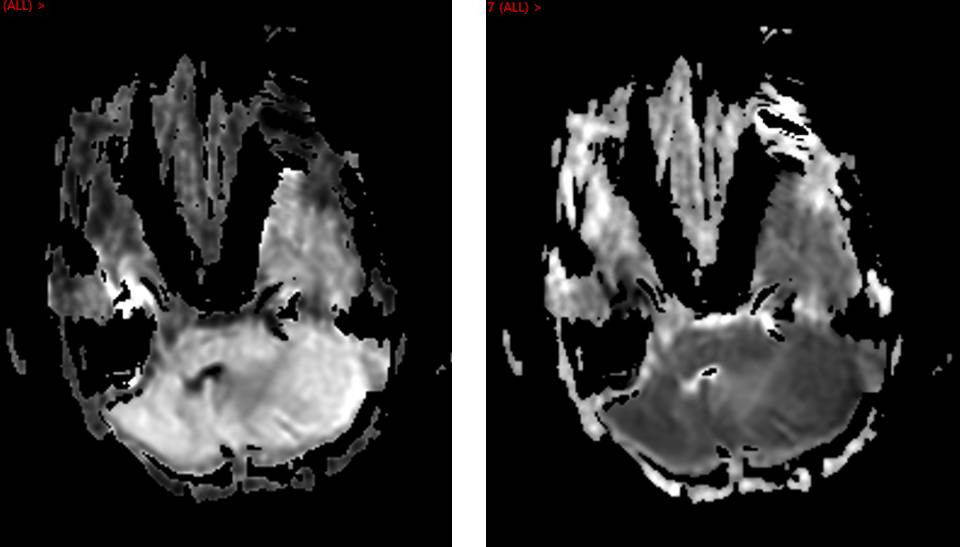 Granulocytic Sarcoma in HIV/AIDS MRI Brain