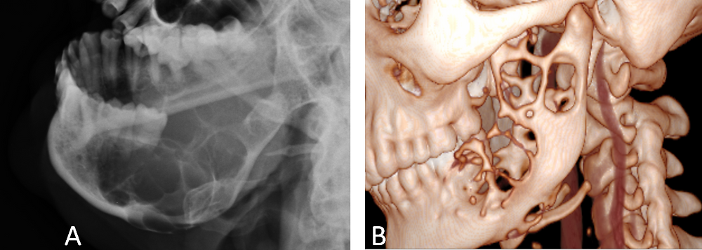 Ameloblastoma of the Mandible - Xray and 3D CT scan