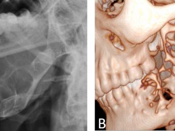 Ameloblastoma of the Mandible