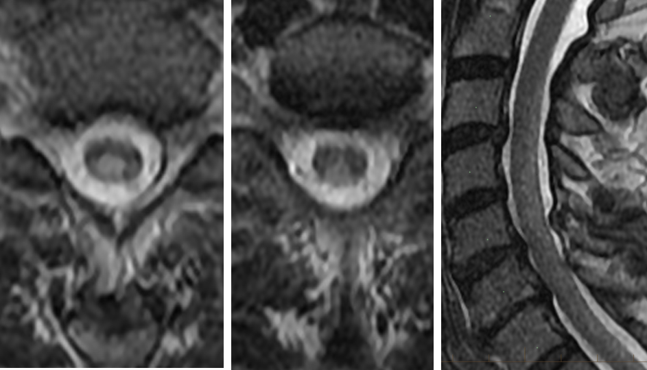 MRI of Subacute combined degeneration of the cord - Vitamin B12 Deficiency