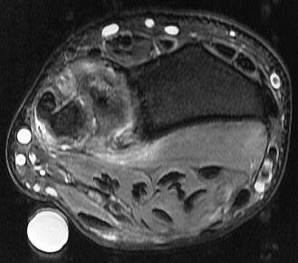 Ulnar impingement syndrome2