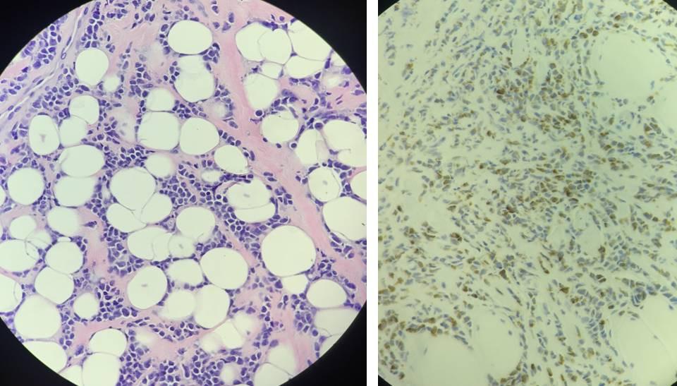Photomicrographs of granulocytic sarcoma