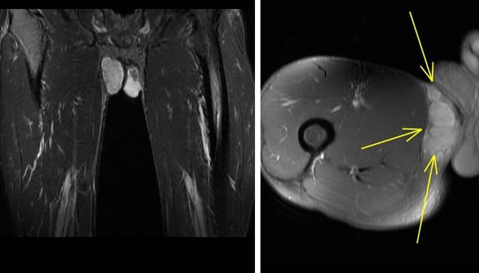 Synovial Hemangioma of the Knee