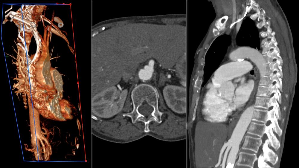 MitraClip Cardiac Device X-Ray