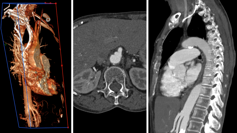 Celiacomesenteric trunk 3D CT scan