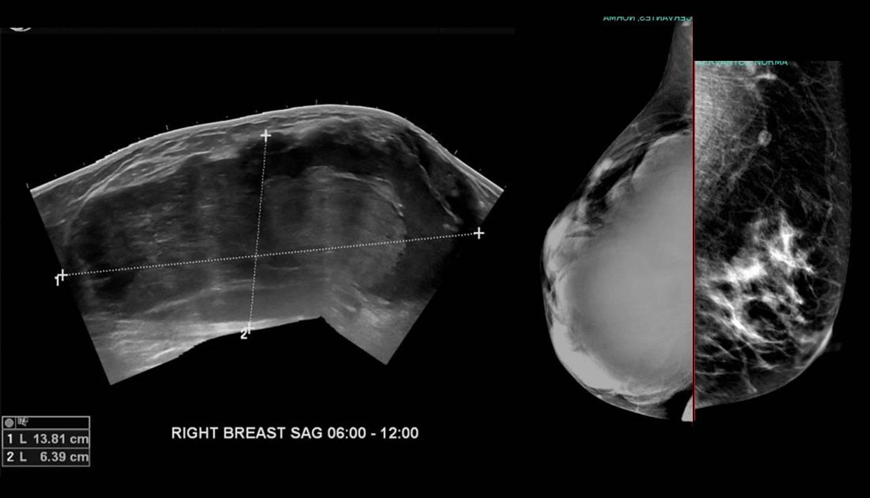 Phyllodes Tumor of the Breast | Radiology Education Seminars |  International | Global Radiology CME