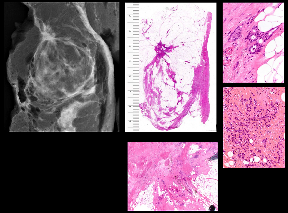 Bilateral Breast Cancer Mammogram and Histology correlation