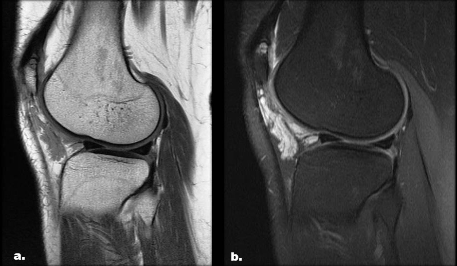 Synovial Hemangioma of the Knee