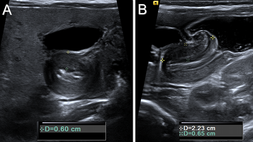 Pyloric Stenosis Ultrasound