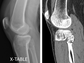 Lateral Tibial Plateau Fracture