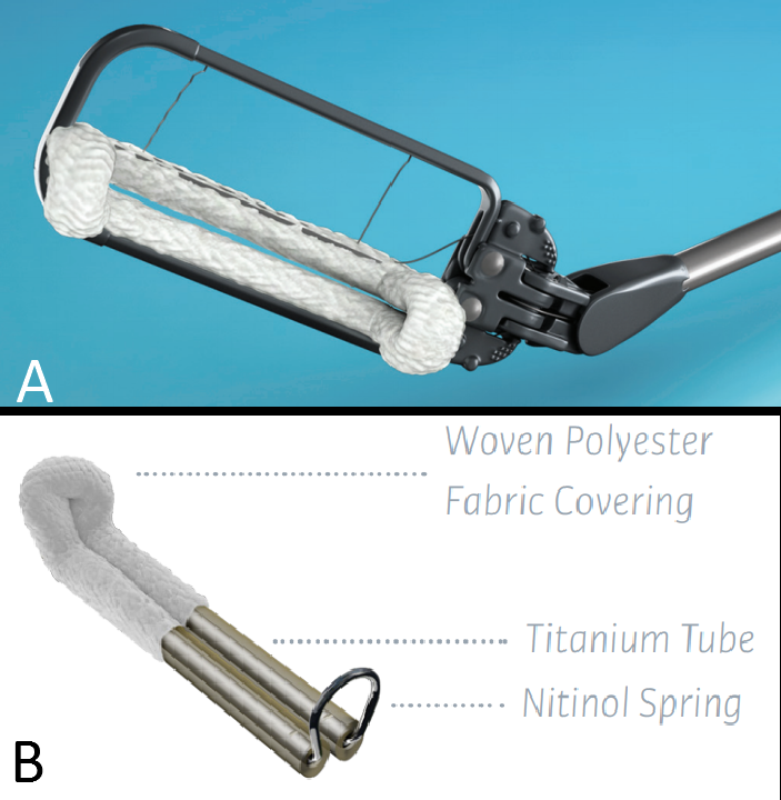 AtriClip® Left Atrial Appendage Exclusion System