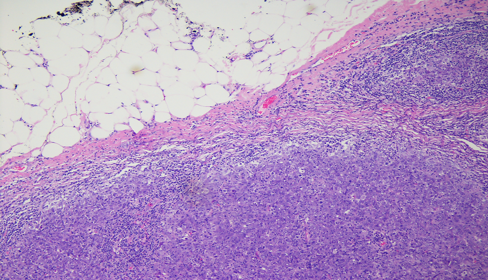 """Low power view of medullary carcinoma with well circumscribed, """"pushing"""" border. Histology images"""