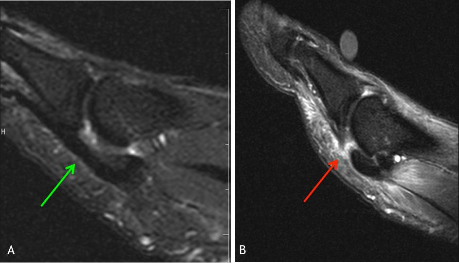 MRI of Turf Toe