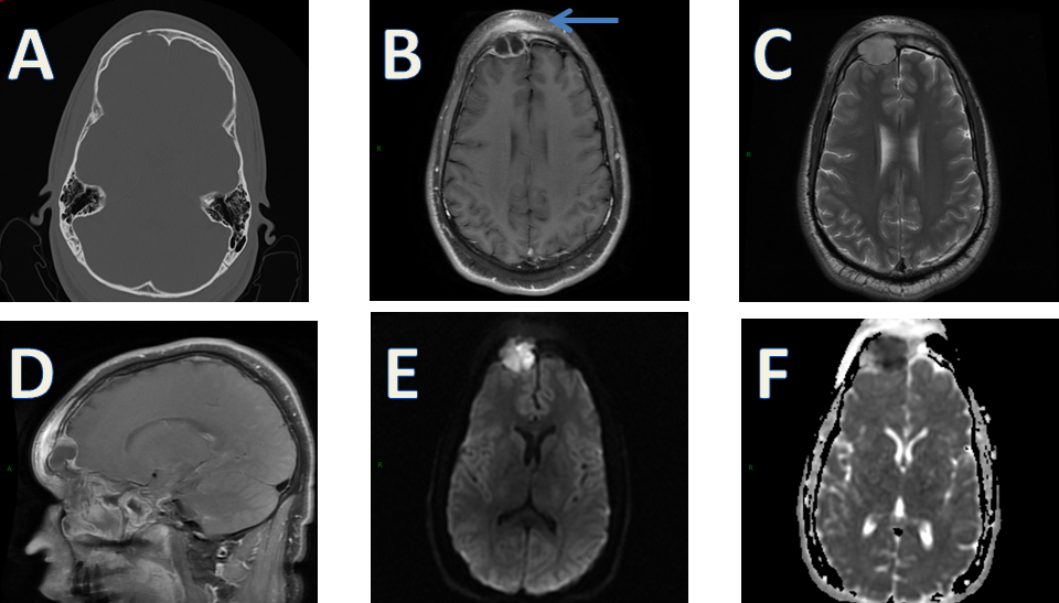 Pott Puffy Tumor CT and MRI Scans