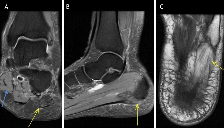Chronic Plantar Fasciosis with Baxter's Denervation MRI