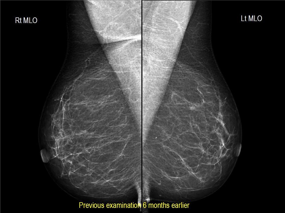 Hemangioma of the breast - Earlier normal mammogram