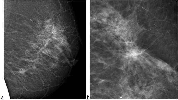 Radial Scars and Invasive Breast Cancer - mammogram
