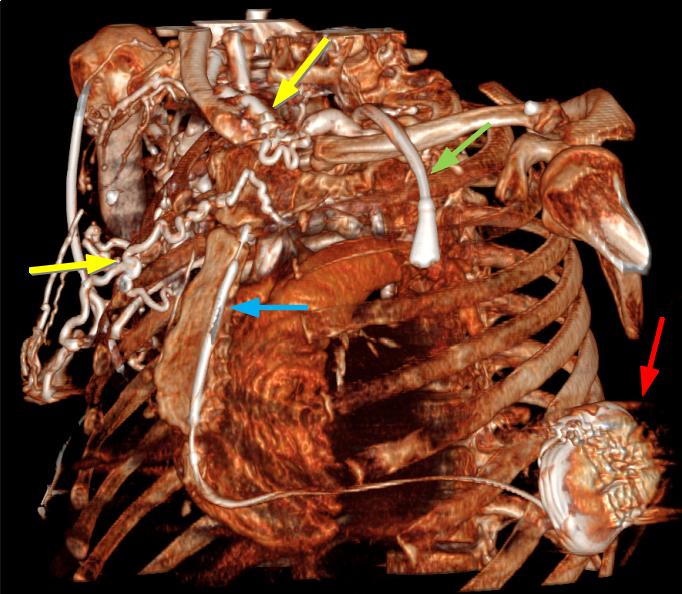 Subcutaneous Implantable Cardioverter Defibrillator 3D CT Scan