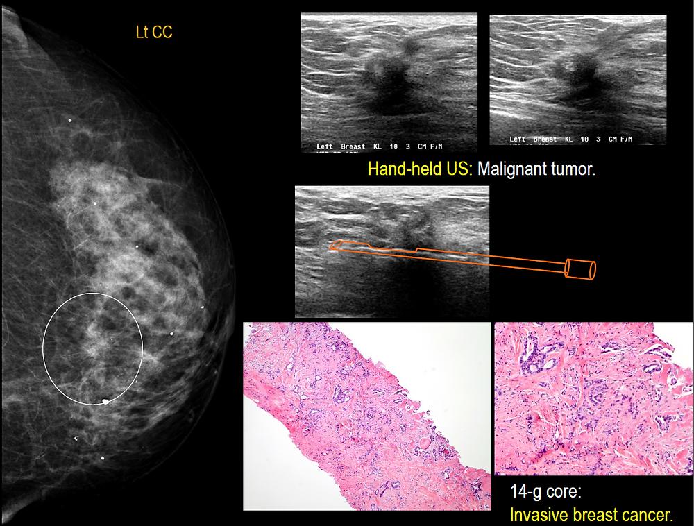 Bilateral Breast Cancer Mammogram Ultrasound and Histology correlation