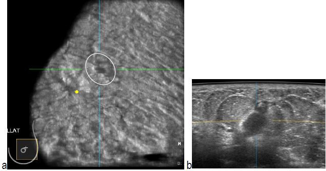 Radial Scars and Invasive Breast Cancer - ABUS