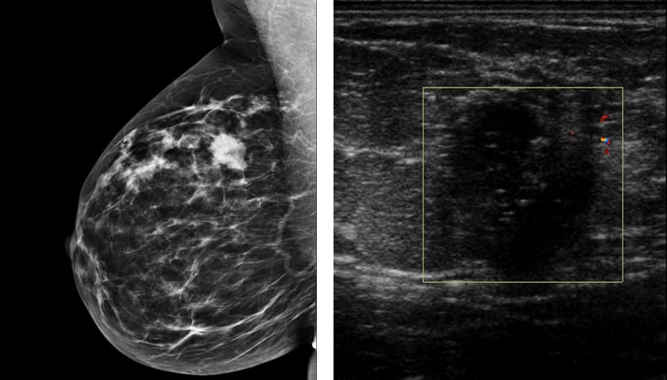 Solid Pseudopapillary Tumor of the Pancreas