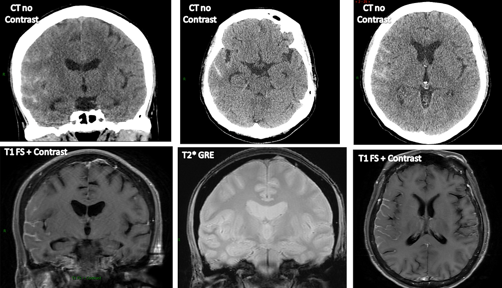Pseudo-Subarachnoid Hemorrhage due to Leptomeningeal Carcinomatosis