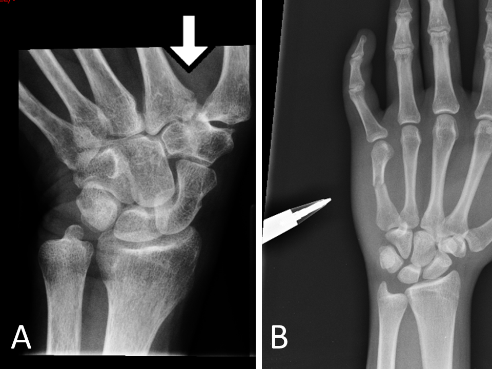 Examples or how to add an arrow to a radiograph