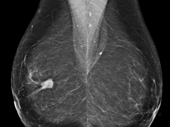 No Debate - Mammography Saves Lives
