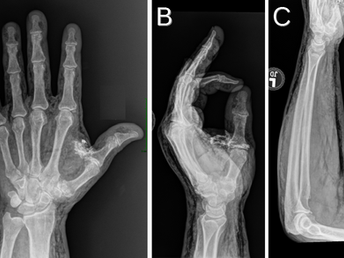 Sandblasting Injury of Hand