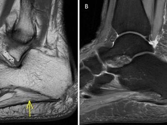 Baxter Neuropathy with Chronic Plantar Fasciosis