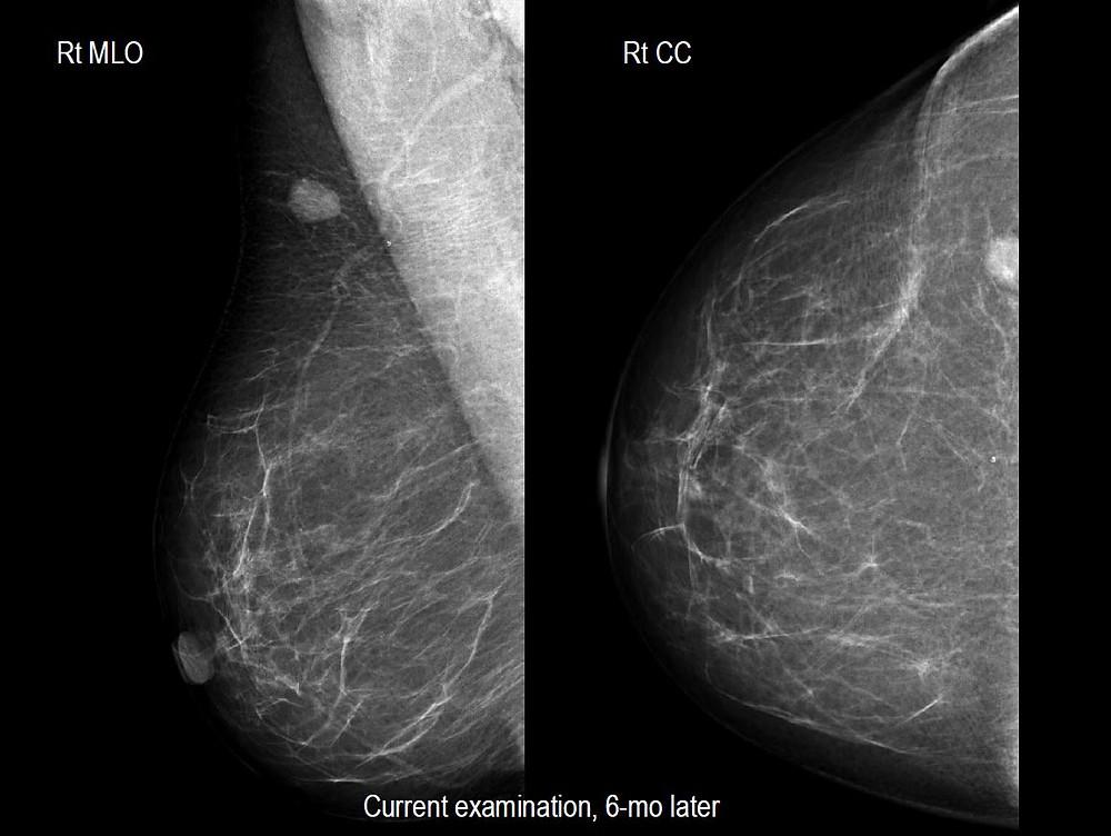 Hemangioma of the Breast - mammogram